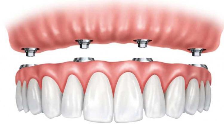 Импланты зубов в Москве