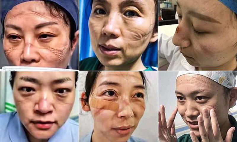 Вот как выглядят лица врачей в Ухани после смены