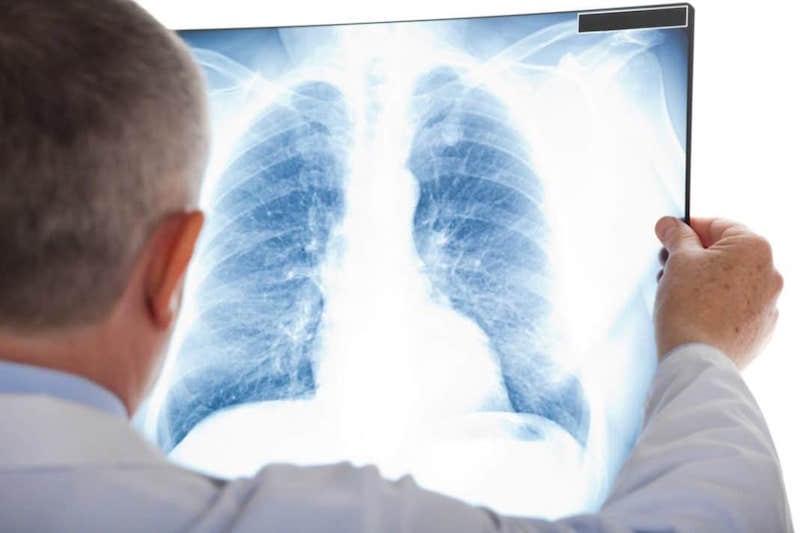 Вскрытие покажет: большинство пациентов с коронавирусом умирают не от пневмонии