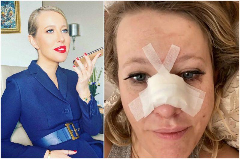 Ксения Собчак попала в больницу с переломом носа и сотрясением мозга