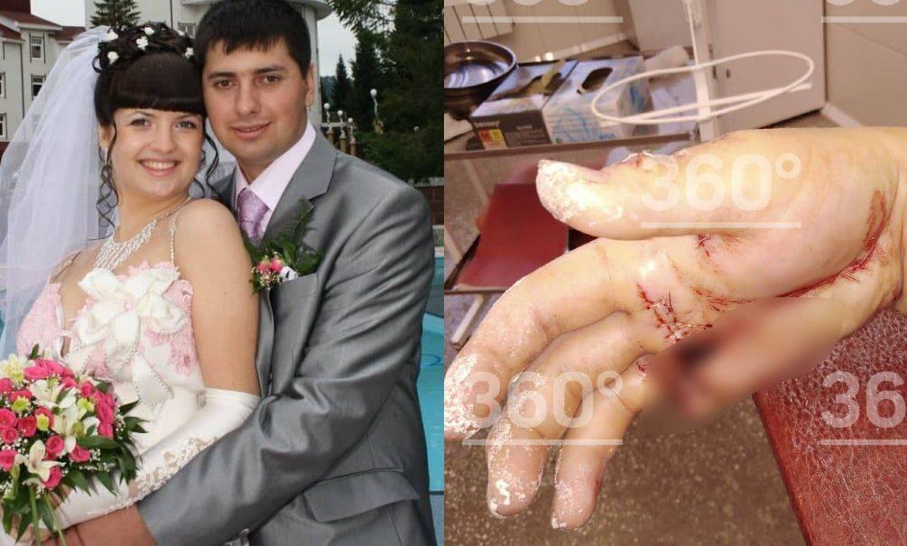 «Сейчас я тебе покажу работу, поработаешь ты!»: житель Алтая изрубил бывшей жене руки топором