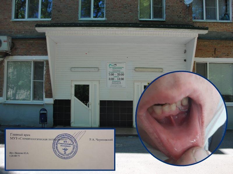 Вырванный по ошибке здоровый зуб мужчине примотали обратно проволокой в стоматологии Волгодонска