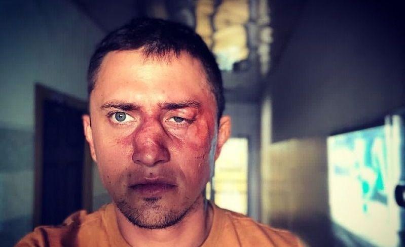 Поспорили, кто из них лучший боксер: Прилучного избил владелец ночного клуба в Калининграде