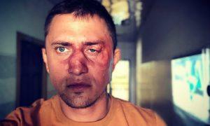 Павел Прилучный выступил с заявлением после истории с избиением