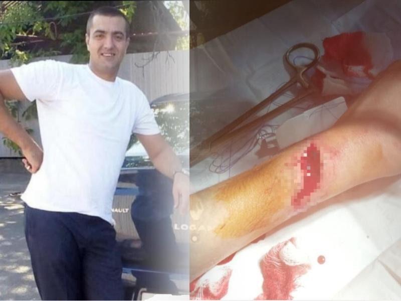 В Таганроге мастер натяжных потолков порезал клиентку, спрятался от суда и остался безнаказанным
