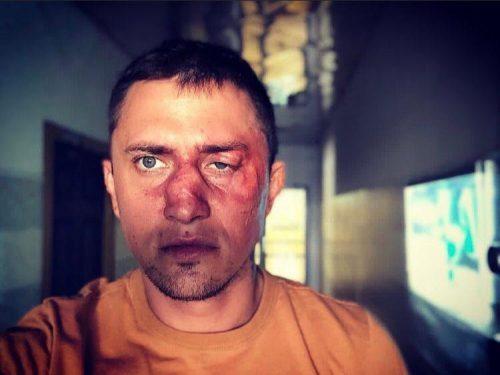Возбудили уголовное дело после избиения Павла Прилучного