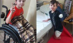 Как спустя два месяца живет 11-летний волгоградец без ног и руки после ДТП с автобусом