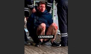 Пьяный и без трусов: в Астрахани сын депутата-единоросса сбил прокурора и его жену