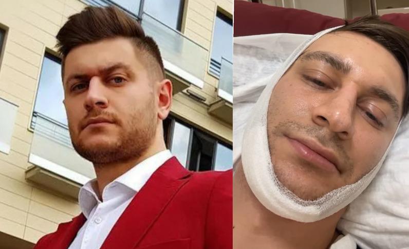 Еле разговаривает: Давид Манукян снял видео после операции
