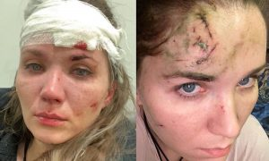 «Пол-черепа онемело, глаз не открывался»: Анастасия Веденская о последствиях нападения