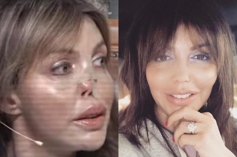Алиса Аршавина с провалившимся носом впервые появилась в студии телешоу