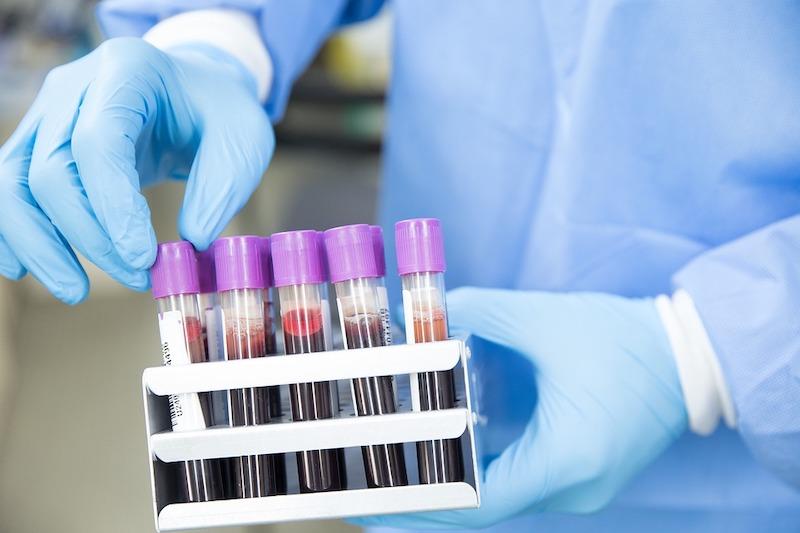 Ученые по анализу крови высчитали максимальный возраст жизни человека, и он оказался неожиданно большим