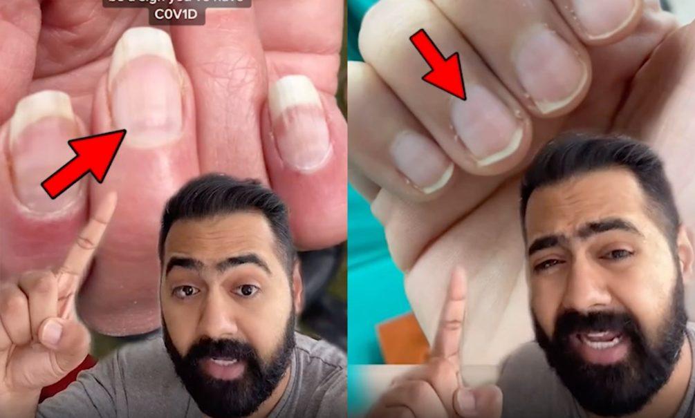 Коронавирус можно увидеть на ногтях. Видеоинструкция от врача