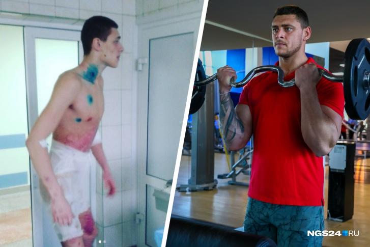 «Я — Франкенштейн»: россиянин, обгоревший в пламени при 1700 градусах, стал фитнес-тренером