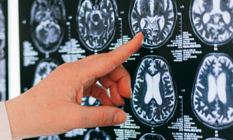 Люди задыхаются при ковиде из-за поражения мозга, рассказали ученые