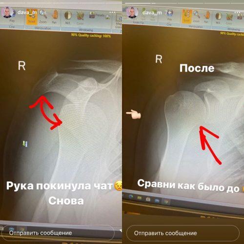 «Надеюсь, операция поможет»: Дава показал последствия аварии