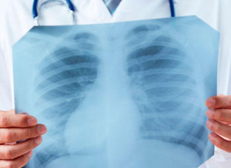 «Разрывает легкие»: какие опасные симптомы несут новые штаммы коронавируса