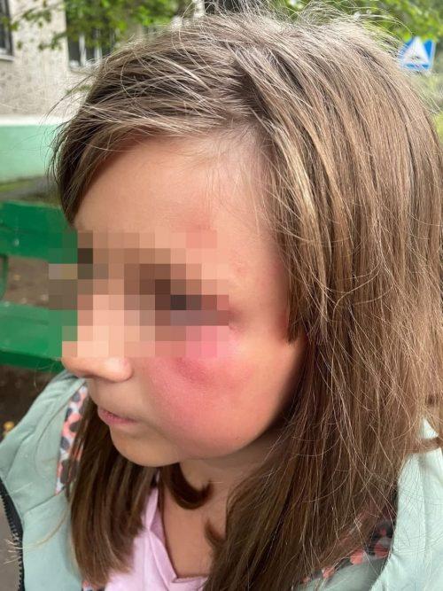 В Солнечногорске пойман маньяк, душивший девочку на улице