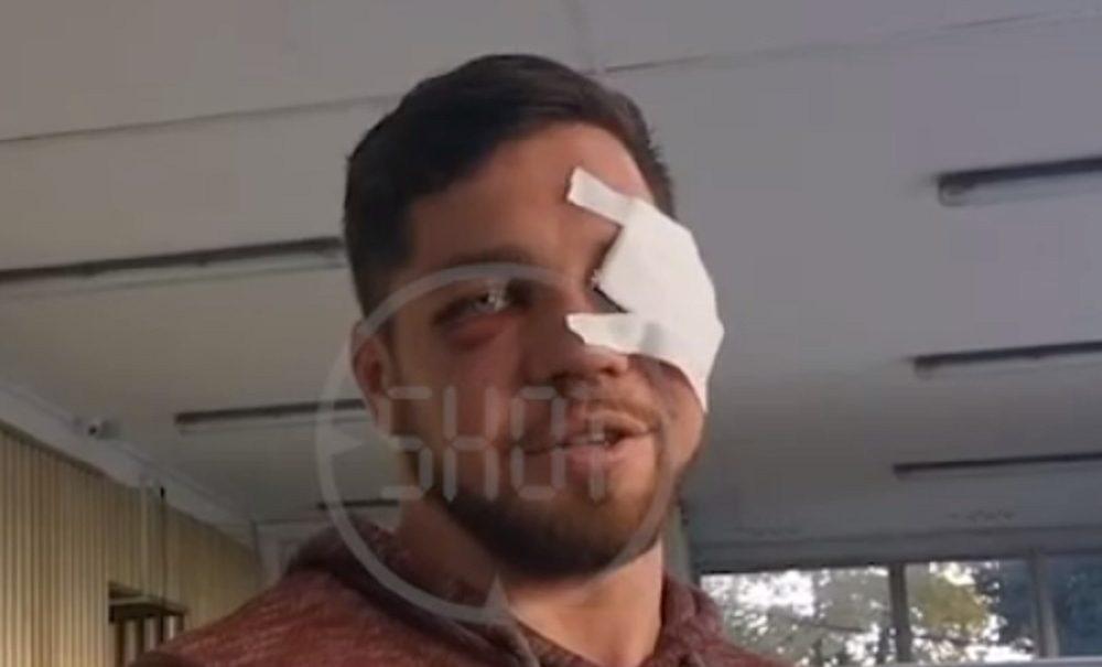 «Я посчитал нужным подойти»: москвич, избитый дагестанцами в метро, рассказал, с чего началась драка